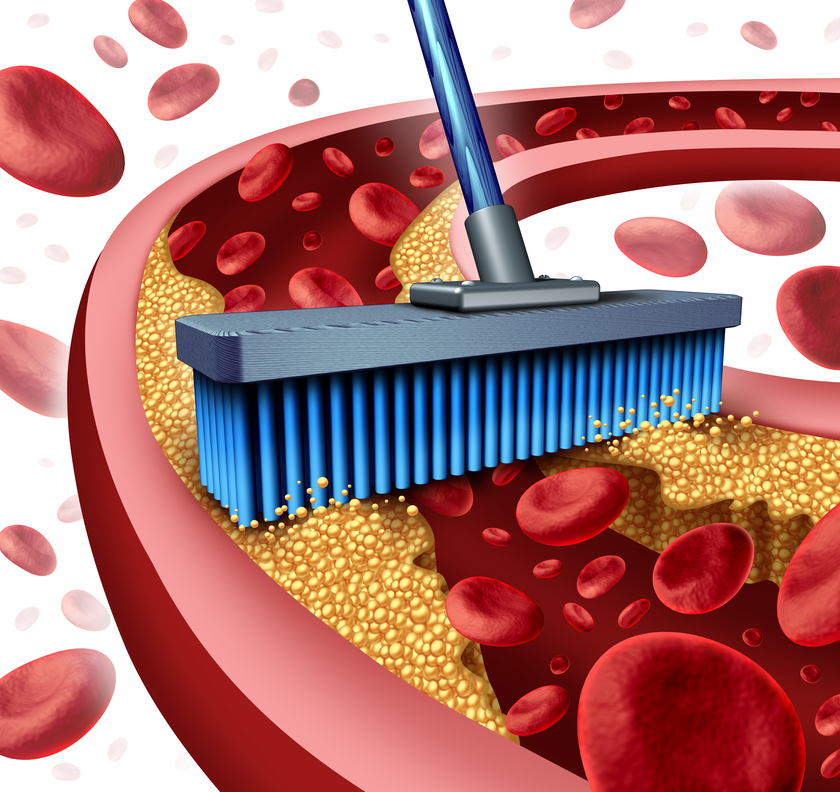Cleaning arteries concept as a broom removing plaque buildup in a clogged artery as a symbol of atherosclerosis disease medical treatment opening clogged veinsÊwith blood cells as a metaphor for removing cholesterol as an icon of vascular diseases.
